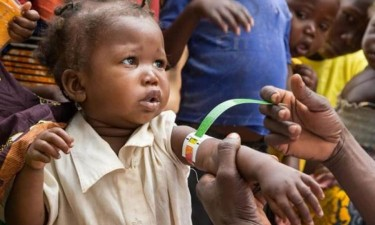 Desnutrição grave recebe um milhão de dólares