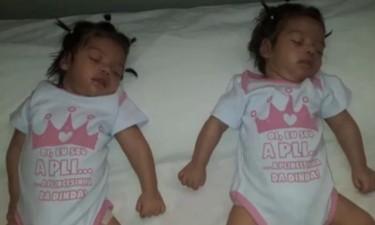 Gémeas de seis meses dormem desde que nasceram