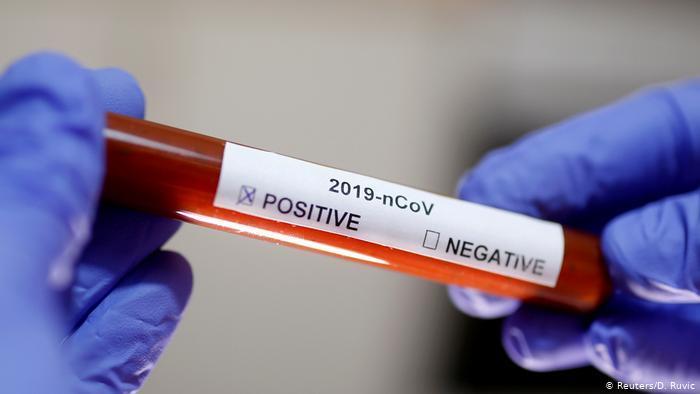Cabo Verde confirma primeiro caso do novo coronavírus
