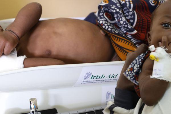 UNICEF apoia o combate à desnutrição