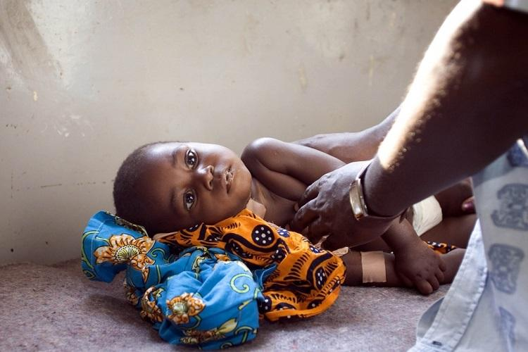 Angola recebe mais de 100 milhões USD para combate à malária